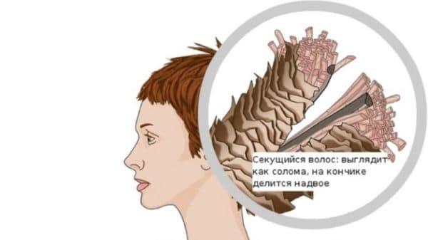 Секущийся волос изнутри