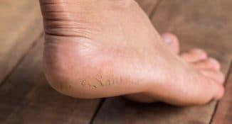 Лечение трещин на пятках