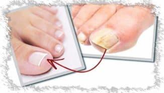 Лаки от грибка на ногтях