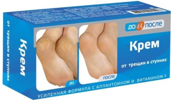 Крем от трещин на пятках и между пальцами ног До и После