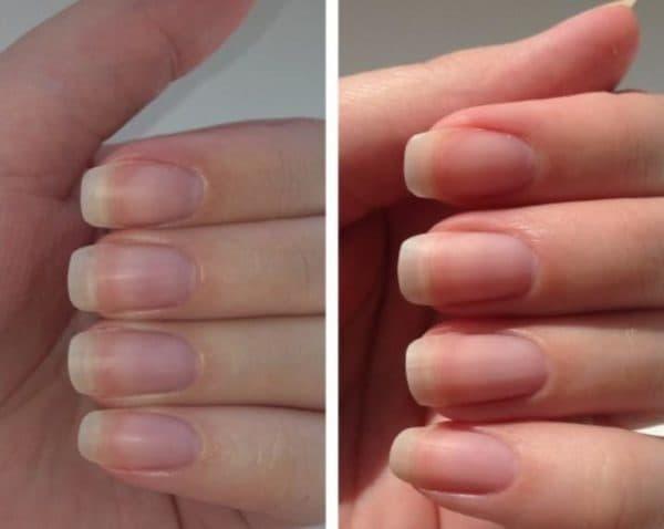 До и после лака для ногтей 8 в 1 Эвелин
