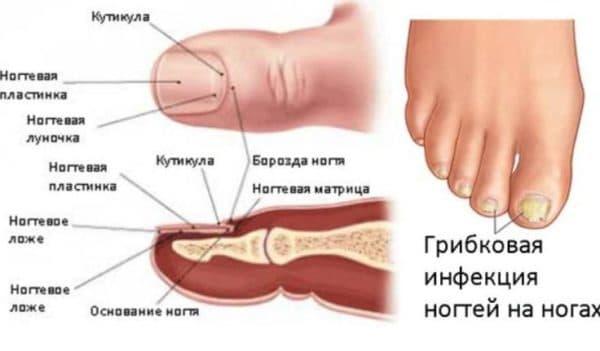 Очаг грибковой инфекции на ногтях