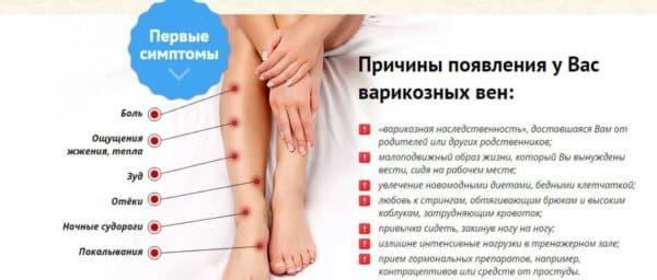 Первые признаки и симптомы варикоза на ногах