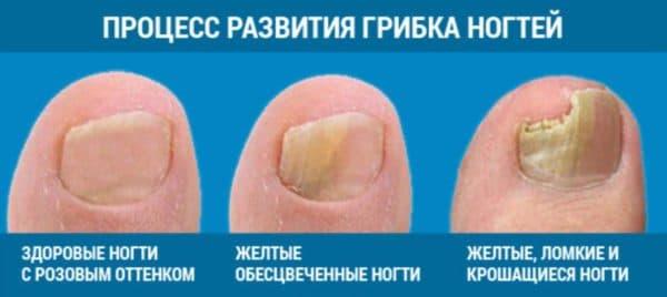 Стадии развития грибка на ногтях