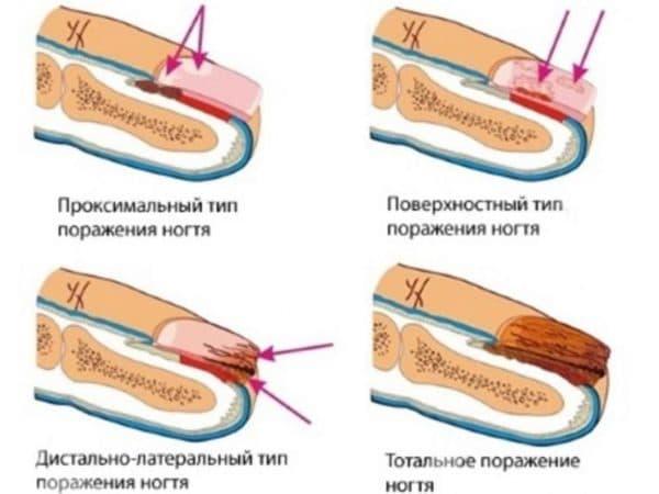 Стадии развития грибка на ногтях ног