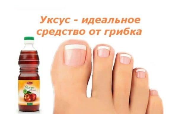 Уксус столовый против грибка на ногтях ног