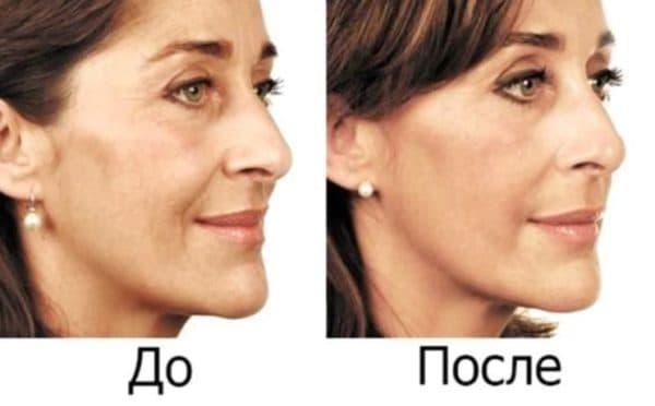 До и после применения маски для лица с димексидом