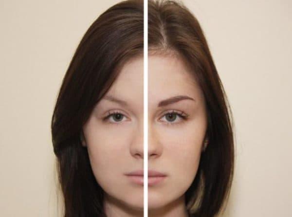 Результат микроблейдинга на сухой коже