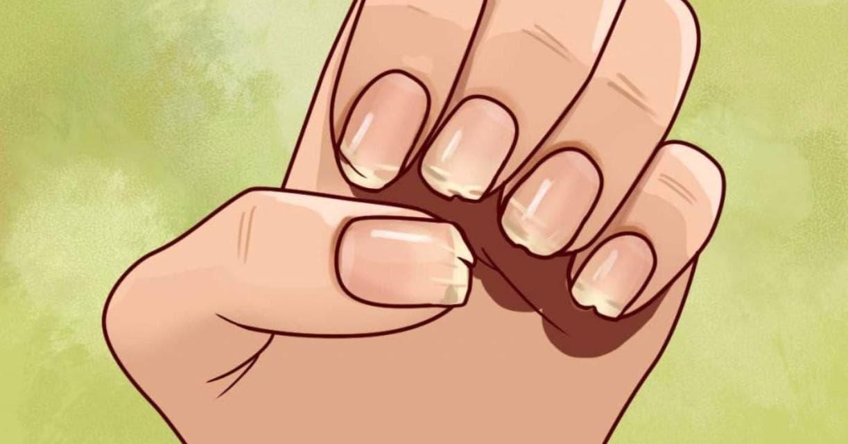 Слоятся ногти на руках — причины и лечение