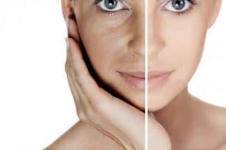 Кремы против пигментации кожи на лице