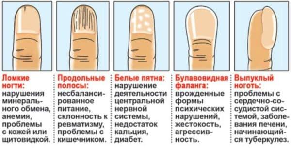 Диагностика состояния здоровья по ногтевой пластине
