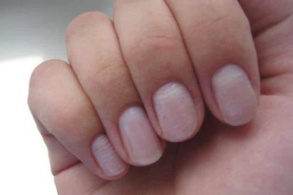 Горизонтальные бугорки на ногтях