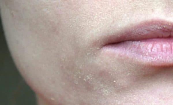 Тональный крем скатывается на коже лица